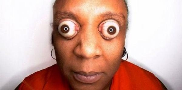 Crazy Eyes Woman Photo